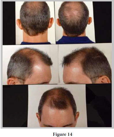 Eclectic Approach of the Donor Area in Baldness Surgery- Use